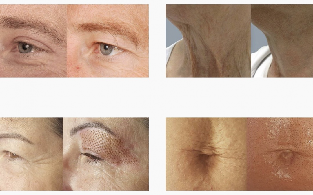 Plasmapenn – naturlig hudforyngelse uten injeksjon eller kirurgi